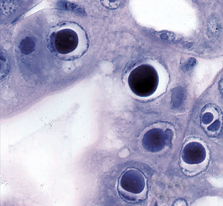 Article image for Genetic diversity of HPV parvovirus