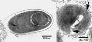 Microsporidian