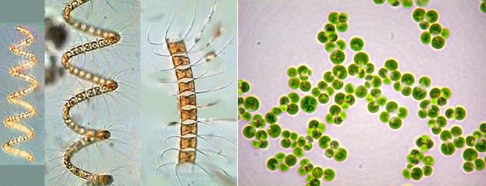 Chaetoceros sp. (nordicmicroalgae.org – left) and Chlorella sp. (tradeboss.com – right)