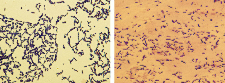 Article image for Developing live bacterial vaccines by selecting resistance to antibacterials