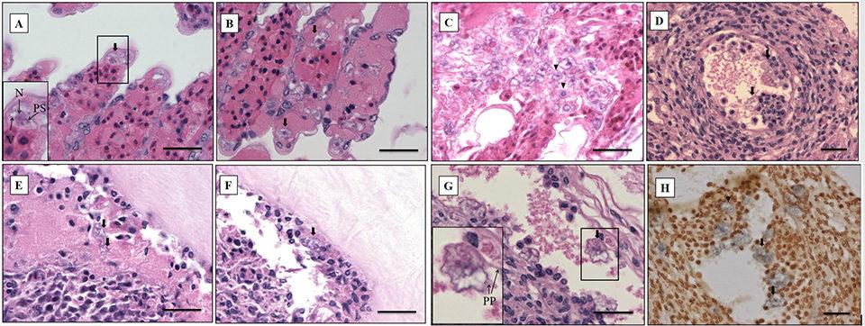 amoebic parasite